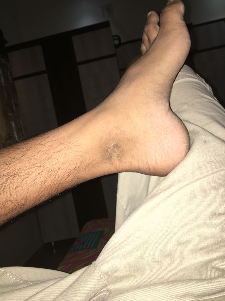 dry rough patch of skin on ankle